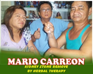 Mario Carreon (Kidney Stone Removed by Herbal Therapy)