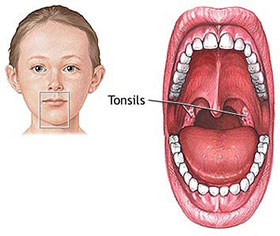 Tonsillitis - How to get rid of tonsils fast in children