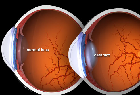 Cataract images - Ayurvedic Medicines for Cataract