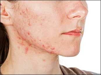 Acne, Herbal Remedies for Acne