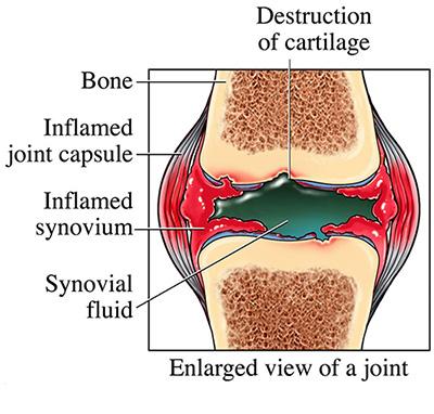 Amavata, Ayurveda, Rheumatoid arthritis