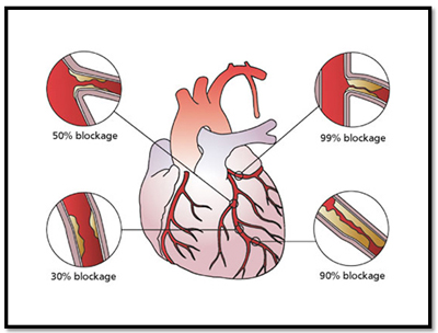 artery blockage