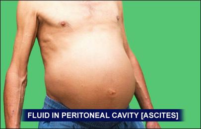 Ascites Fluid - Ascites Symptoms and Signs Images