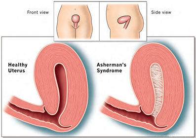 Asherman's syndrome