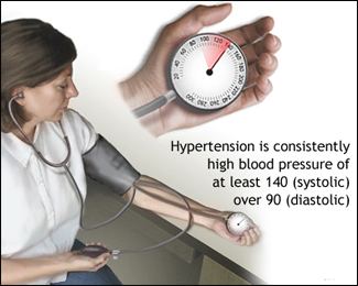 Hypertension (High Blood Pressure)