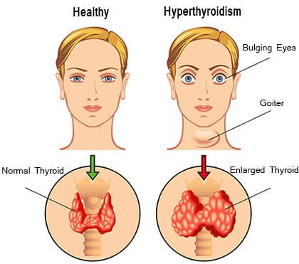 Home Remedies For Hyperthyroidism Natural Treatment