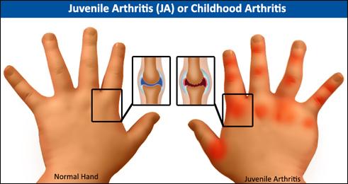 Childhood Arthritis, Juvenile Arthritis