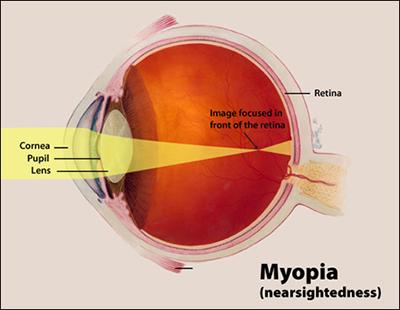 Myopia, Nearsightedness, Shortsightedness