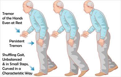 Parkinsonism or Parkinson disease