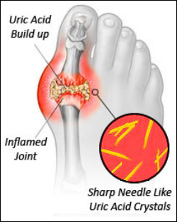 Gout, Uric acid