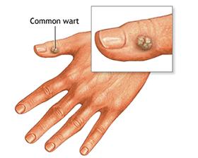 wart treatment ayurvedic medicine system well efecte adverse