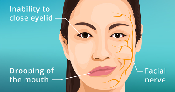 Bell's Palsy, Facial Paralysis