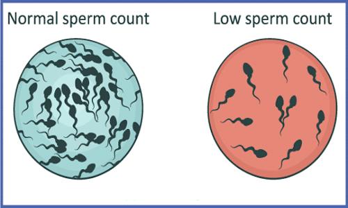 Oligospermia (Low-Sperm-Count)