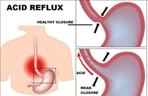 Ayurvedic Remedies for Acid Reflux