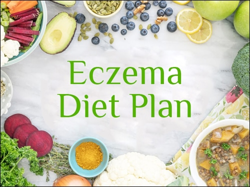 Diet plan for eczema, Diet chart for eczema, Healthy Diet for Eczema Patients